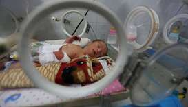 A premature baby lies in an incubator in the child care unit of a hospital in Sanaa, Yemen