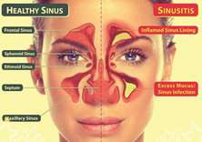 Sinusitis — know the disease that can make your winter harsh
