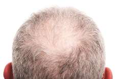 Knowing about hair transplant treatment