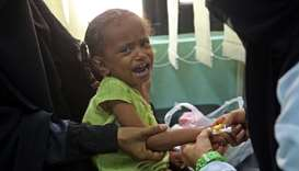 A Yemeni child, who is suspected of being infected with cholera, cries at a hospital in the Yemeni c