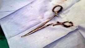 Scissors pulled from Vietnam man's stomach