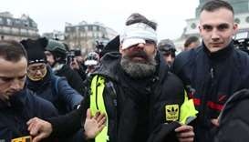Jerome Rodrigues, one of the leaders of the yellow vest movement is evacuated after getting injured