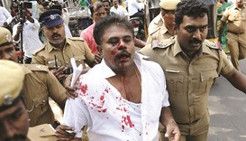 Expelled MP's husband hurt in clashes outside AIADMK office