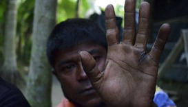 Rohingya refugee Mujibullah as he holds up his hand, which was hacked during a beating by soldiers