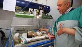A doctor cares for the conjoined twin boys who were born around 10 days ago, at a hospital near the