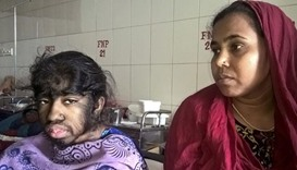 Bangladeshi girl seeks help for rare excess hair condition