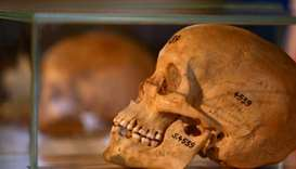 Germany returns skulls from colonial-era massacre to Namibia
