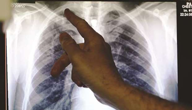 A doctor points to an X-ray showing lungs.