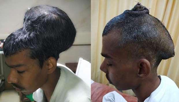 Santlal Pal before undergoing surgery to remove the brain tumour at Nair hospital in Mumbai.  (right