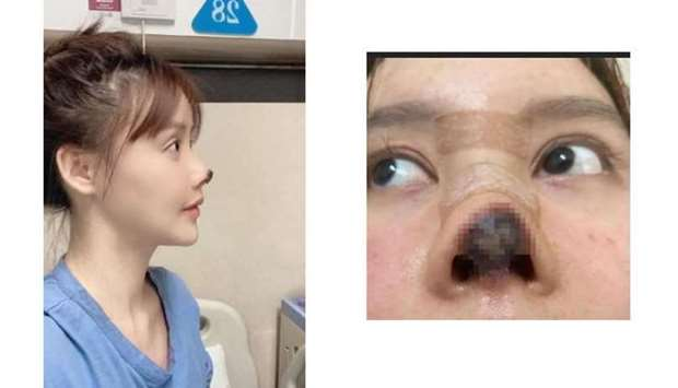 Chinese actress shares photos of her botched nose surgery