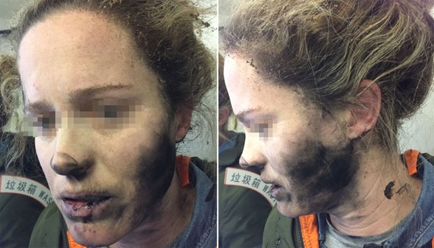 ATSB shows a woman after she suffered burns to her face and hands after her headphones caught fire