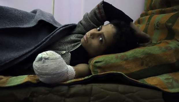 Syrian child Khaled al-Ghorani lies at a clinic after he had his hand amputated in Kafar Batna in th