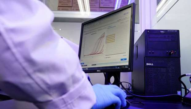 A researcher demonstrates samples of iLAMP Novel-Coronavirus Detection Kit at an iONEBIO's office in