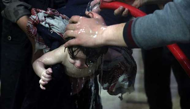 A child is treated in a hospital in Douma, eastern Ghouta in Syria