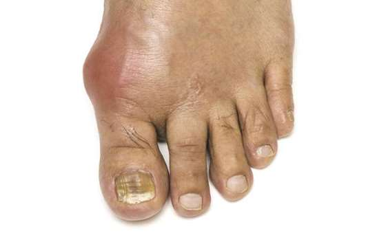 Gout in elderly linked to higher risk of dementia