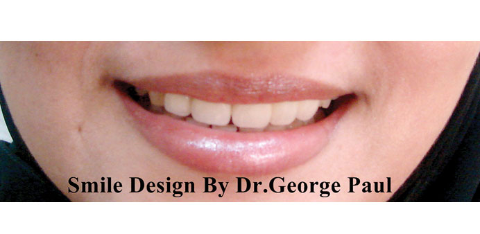 Smile designs by Dr George Paul