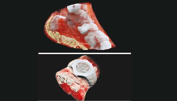 These handout pictures released on July 12 by MARS Bioimaging Ltd shows 3D images of a wrist (with a