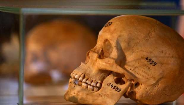 Human skulls from the Herero and ethnic Nama people are displayed during a ceremony in Berlin, Germa
