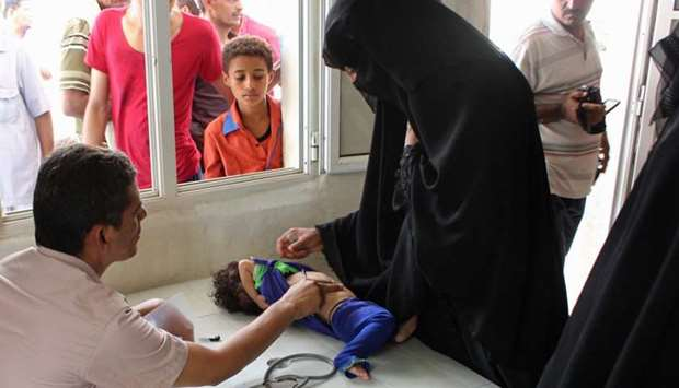 A Yemeni child is checked at a hospital in the northern district of Abs, in Yemen's Hajjah province